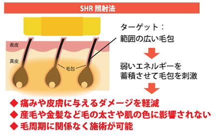 SHR照射法