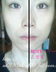 ROSYクリーム使用後 小顔効果 リフトアップ効果 即効性あり