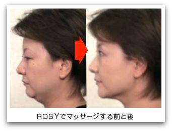 ROSYクリーム 3ヶ月使用した方の変化