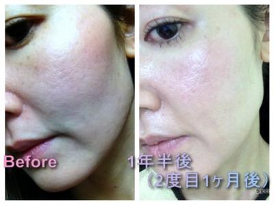 頬のこけ 全顔治療後