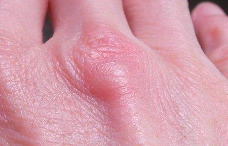 201508101502蚊の被害③