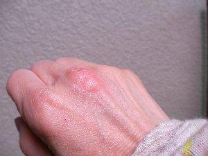 201508101502蚊の被害①