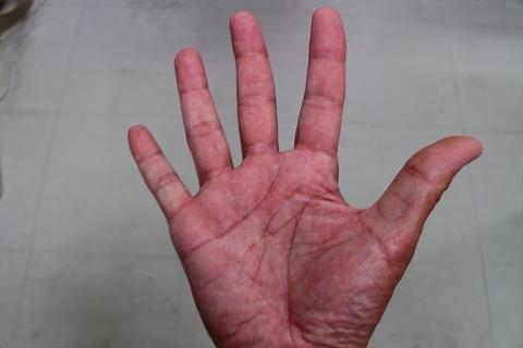 豆の直った右手